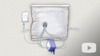 Artificial womb device illustration