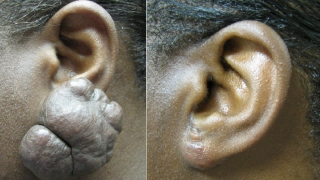 Pre-operative and post-excision of keloid and repair of earlobe.