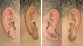Ear Injuries and Split Earlobes | Children's Hospital of