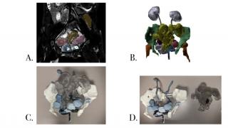 3D modeling process of a teenage girl's pelvic bone