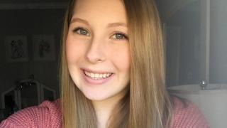Alexa hyperhidrosis patient smiling