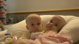 Amelia and Allison before surgery