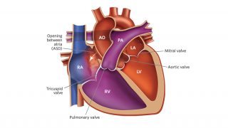 Atrial Septal Defect Illustration