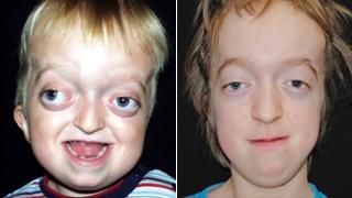 Crouzon Syndrome | Children's Hospital of Philadelphia