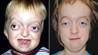 Craniosynostosis Syndromic Crouzon Patient Before and After