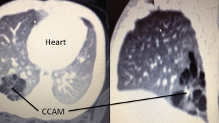 postnatal ct scan images at five weeks