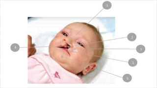 Cleft care chart