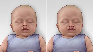 Cleft Lip & Palate showing both bilateral incomplete and complete