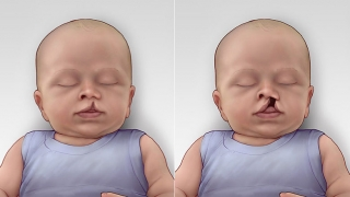 Cleft Lip & Palate showing both unilateral incomplete and complete
