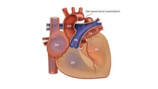 Coarctation of the Aorta Illustration