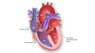 Complete Common Atrioventricular Canal Illustration