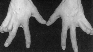 Complex Syndactyly