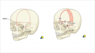 Demonstration of the bony cuts of a unilateral frontal orbital advancement