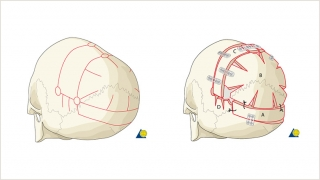 Demonstration of the bony cuts of a posterior vault remodeling