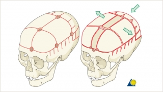 Demonstration of the bony cuts of a total cranial vault reshaping