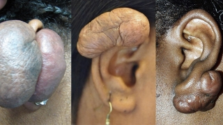 Ear Keloids | Children's Hospital of Philadelphia