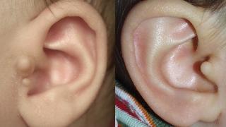Ear Tags | Children's Hospital of Philadelphia
