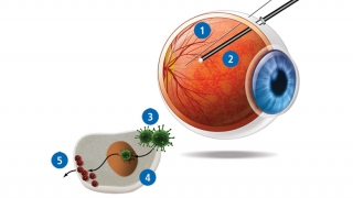 Diagram illustrating gene therapy for inherited blindness
