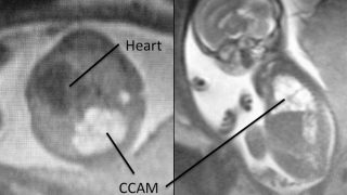 fetal mri at 23 weeks