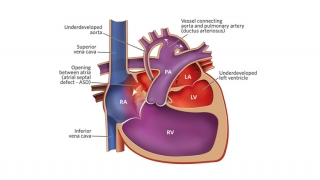 Hypoplastic Left Heart Syndrome Heart Illustration