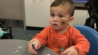 Matthew crohns disease patient at 1 year old with NG tube