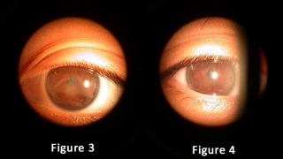 Partners In Preventing Eye Disease: Rheumatology And Ophthalmology