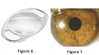 Pediatric Aphakia And Where To Place An Intraocular Lens - Figures 6 & 7
