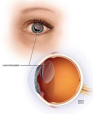 Pediatric Aphakia And Where To Place An Intraocular Lens - Figure 5