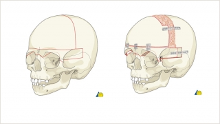 Demonstration of the bony cuts of a bilateral frontal orbital advancement