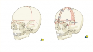 Demonstration of the bony cuts of a bilateral frontal orbital advancement and broadening