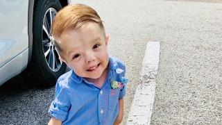 Severe Infantile Scoliosis and Rib Fusion: Jonathen's Story