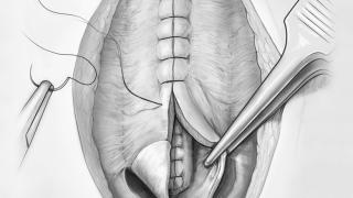 Spina Bifida Illustration