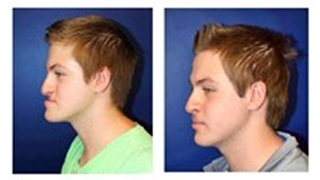 Jaw patient surgery before and after photos
