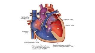 Tetralogy of Fallot Repair Illustration