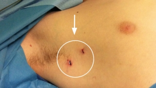 thorascopic sympathectomy incisions