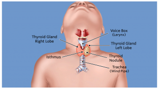 Pediatric Thyroid Surgery Children S Hospital Of Philadelphia