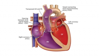 Transposition of the Great Arteries Illustration