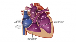 Tricuspid Atresia Illustration
