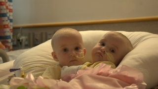 Tucker twins prior to surgery