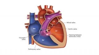 Ventricular Septal Defect Illustration