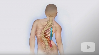 Thoracic insufficiency syndrome illustration