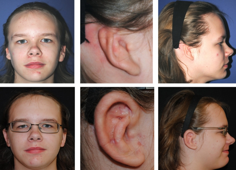 Ear reconstruction using rib graft