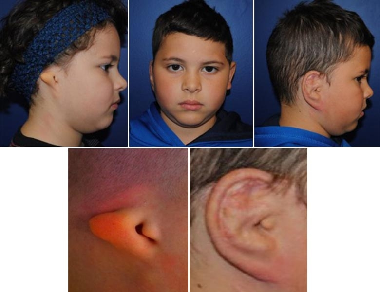 Ear before and after ear reconstruction