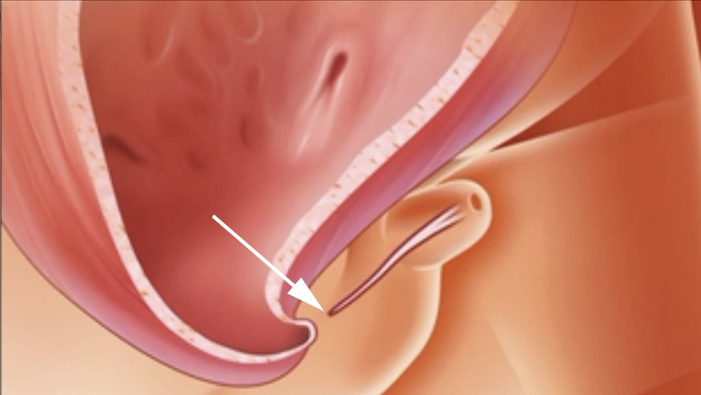 Illustration of Urethral atresia (UA), a complete obstruction of the urethra, can cause LUTO