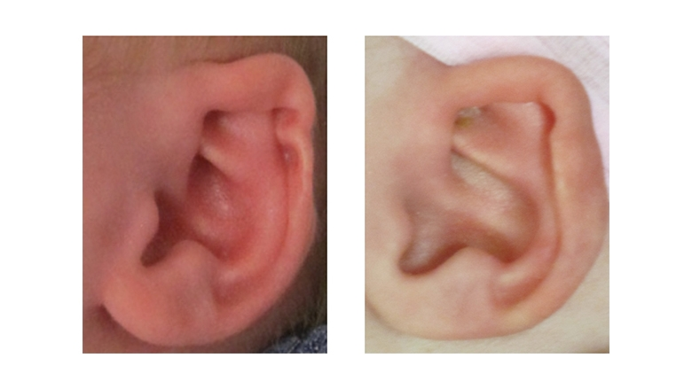 Combination ear deformity before and after ear molding