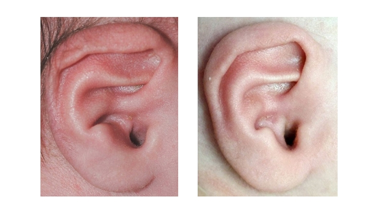 Constricted Ear Deformity before and after Ear Molding