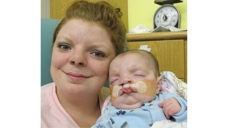 Bilateral Cleft Lip Child and Mom Image