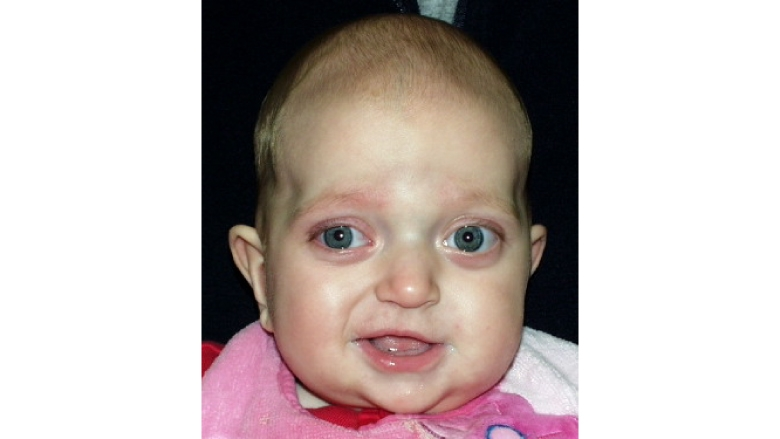 Pfeiffer Syndrome Image