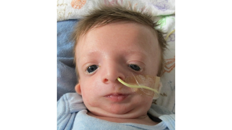 Treacher Collins Syndrome Image