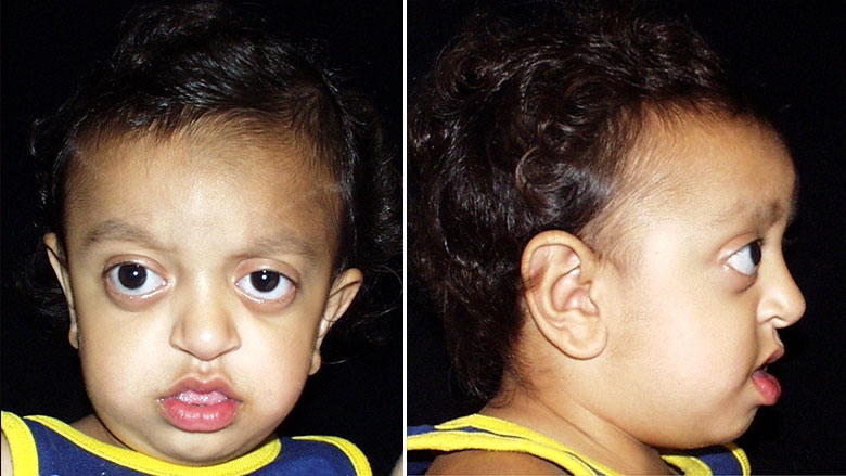 18 month old with Crouzon syndrome